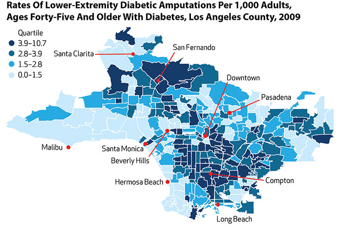 Bad Areas Of Los Angeles Map.Amputation More Likely For Poorer Diabetics University Of California