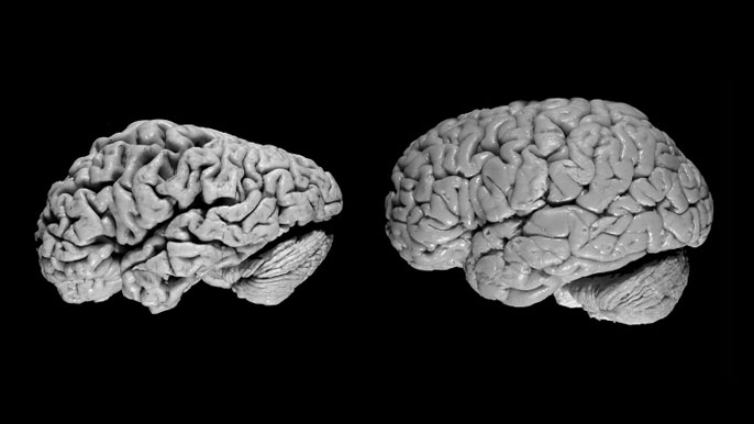 A comparison of two brains