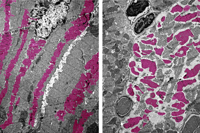 Heart muscle tissue close-up