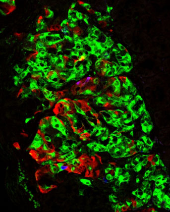 Science image of islet cells generated from human stem cells in the lab transplanted into mice.