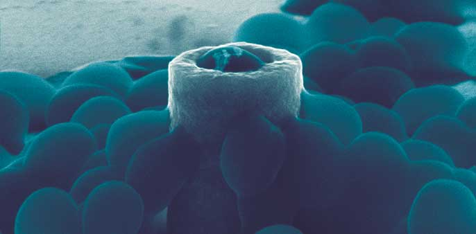 staph/nanotube shape