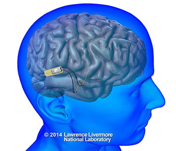 implantable neural device