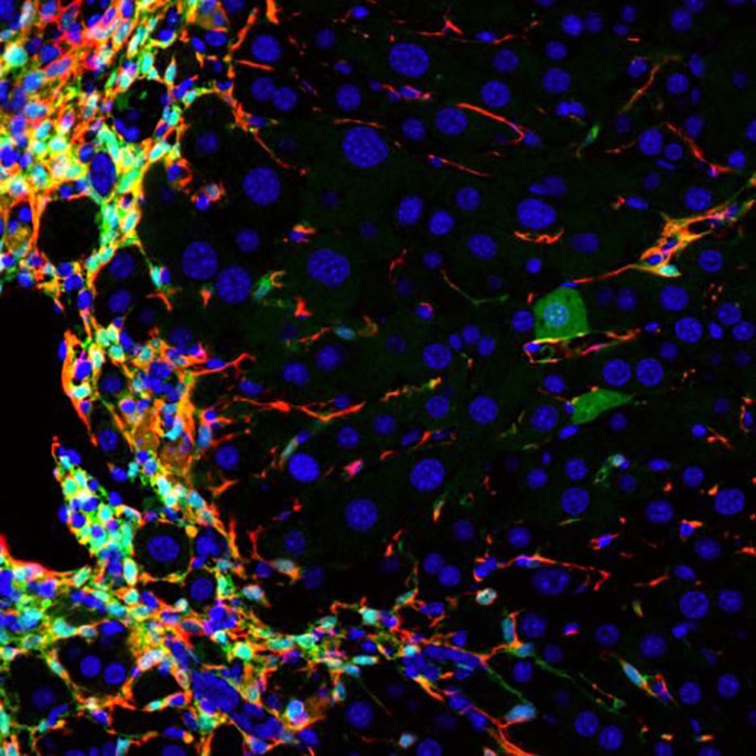 UCSF cirrhosis to healthy liver cells