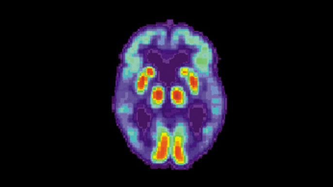 Alzheimer's disease as shown in a brain PET scan