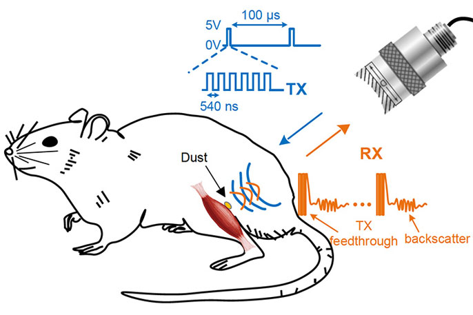 Neural Dust Could Treat The Body From Inside University Of California