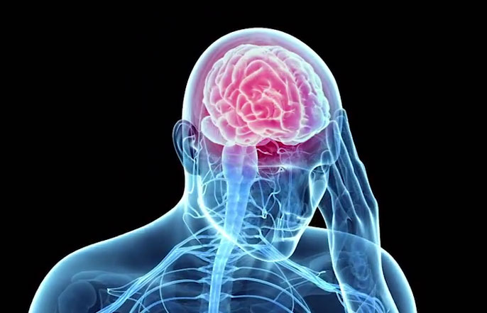 UCSF traumatic brain injury