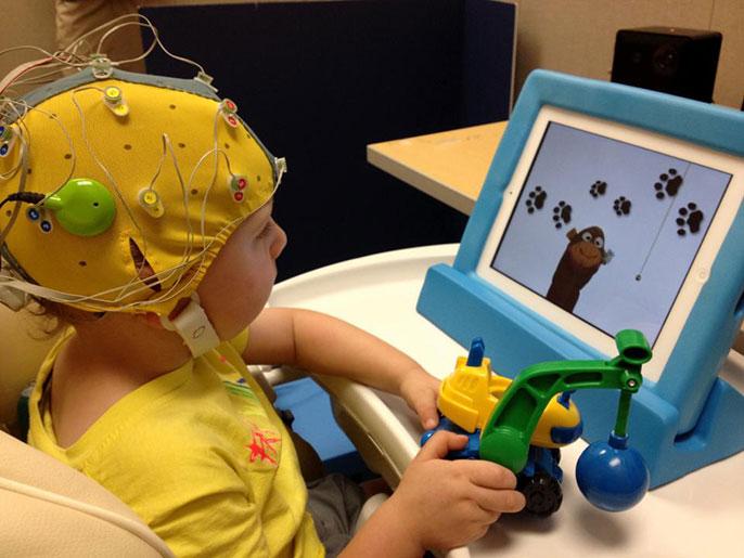 UC Davis cochlear implant