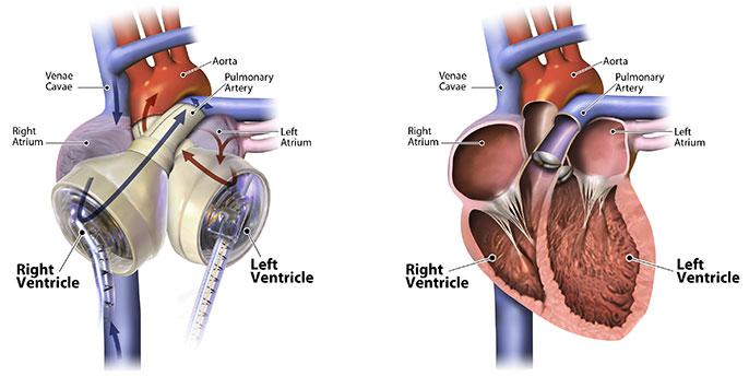 diagram, artificial heart and human heart
