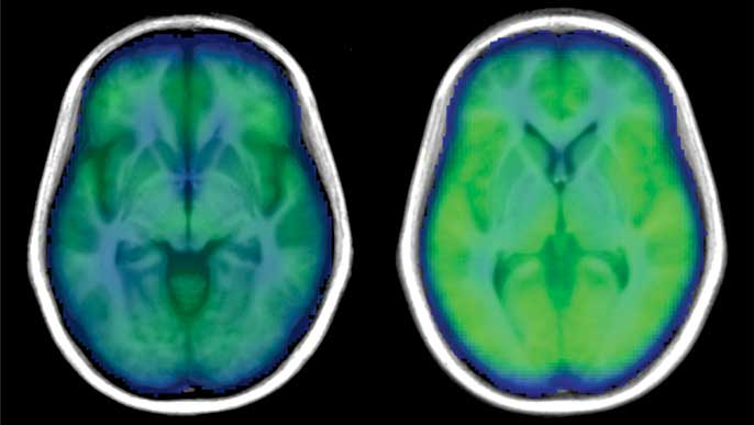 Brain scans: with (left) and without obstructive sleep apnea