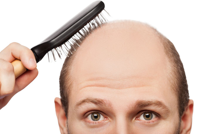 A new baldness treatment? | University of California