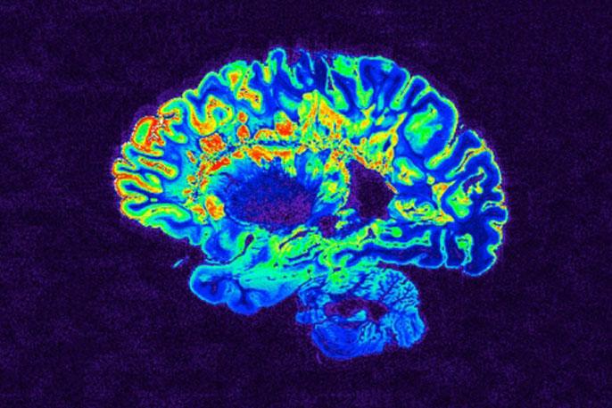 UCSF MRI MS