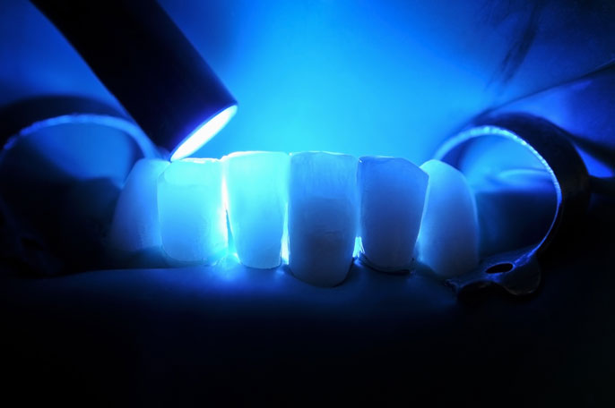 Painless dental lasers can render teeth cavity-resistant